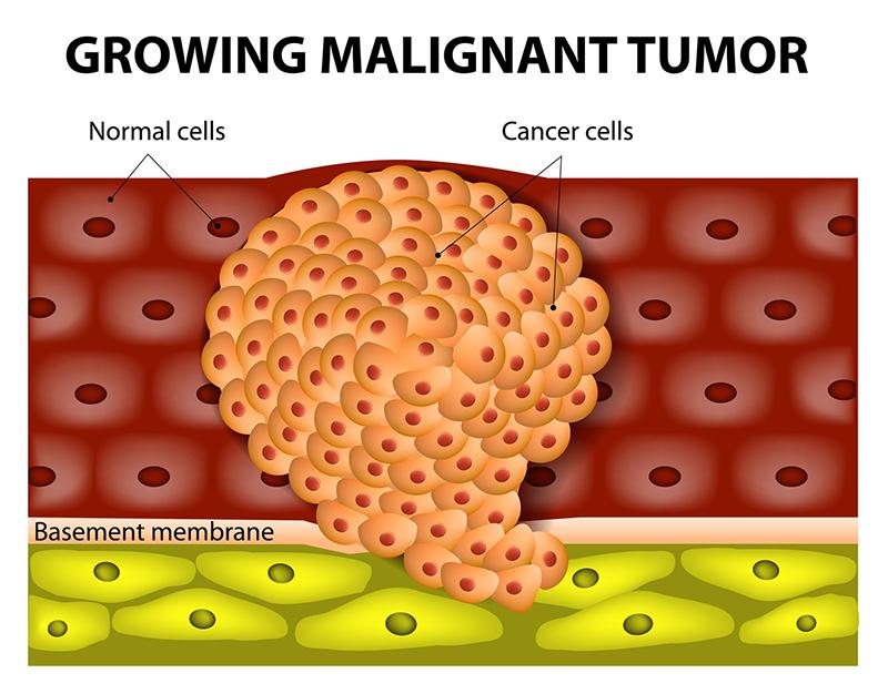 2. Los tumores benignos y malignos