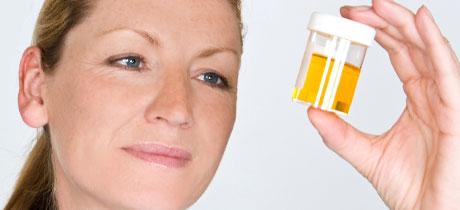 pastillas para examen de orina