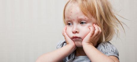 Como saber a que es alergico mi bebe